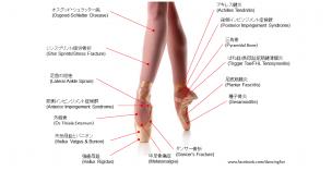 バレリーナの足に多い怪我、15例(解説付き)