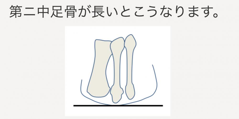 第二中足骨が長いとこうなります。